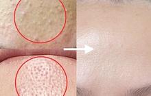 Da sạm hay thâm nám đến mấy cũng căng mịn, chỉ cần bạn chọn đúng 3 dòng retinol kiêm dưỡng ẩm vi diệu này