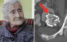 """Hơn 60 năm mang nỗi đau """"không biết đẻ con"""", sau một cú vấp ngã, cụ bà đi khám mới ngỡ ngàng với kết quả siêu âm hóa giải mọi thắc mắc"""