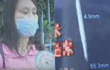 Phát hiện 2 mũi kim kỳ lạ trong đầu sau khi chụp CT não, người phụ nữ hoang mang khi biết được thân phận thật sự vào 29 năm trước