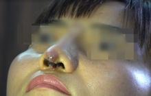 """Người phụ nữ bị đứt lìa trụ mũi, chảy dịch và máu sau 12 ngày đi nâng mũi """"chui"""""""