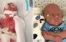 Bé sinh non chỉ nhỏ như bàn tay từng bị 15 bệnh viện từ chối tiếp nhận vì không ai tin có thể sống sót 2 năm trước bây giờ ra sao?