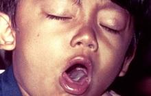 Vi khuẩn ho gà đã kháng vắc-xin, chúng ta sẽ cần một vắc-xin mới trong thập kỷ tới