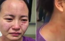 Nữ y tá bật khóc nức nở với gương mặt trầy xước, dính máu khi bị bệnh nhân nhiễm Covid-19 trong khu cách ly tấn công, từ chối điều trị