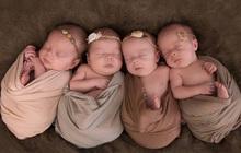 4 bé gái trong ca sinh tư giống hệt nhau vô cùng hiếm trên thế giới với tỷ lệ chỉ 1/70 triệu ca sau 3 năm đã có những thay đổi gây ngỡ ngàng