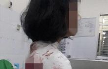 Khởi tố bị can đối tượng liên quan vụ nữ sinh bị đâm trọng thương