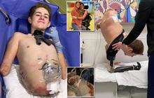 Sống sót kỳ diệu sau khi bị xe 4 tấn đè, phẫu thuật cắt mất nửa thân dưới