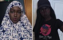 """Cô nàng được mệnh danh là """"búp bê Barbie da đen phiên bản đời thực"""" từng gây bão MXH khiến nhiều người lo lắng với tình trạng hiện tại"""