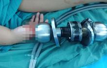 Bé trai 3 tuổi bị kẹt tay vào ổ khóa phải nhập viện, bác sĩ nhi đồng liền đưa lời khuyên cho các bậc phụ huynh