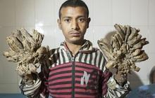 """Chàng trai """"người cây"""" nổi tiếng với đôi bàn tay mọc rễ quái dị ai nhìn cũng sởn gai ốc, phải phẫu thuật hàng chục lần giờ ra sao?"""