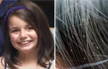 Bố mẹ để nhà bẩn đến kinh hoàng, bé gái 12 tuổi qua đời thương tâm vì đầu bị chấy rận nghiêm trọng
