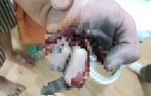 Vừa sạc điện thoại vừa chơi game, một thiếu niên bị nổ nát bàn tay
