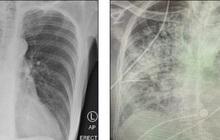 Sốc về mức độ tàn phá hai lá phổi của Covid-19
