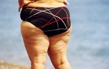 """Nữ giới bắt đầu lão hóa sẽ có """"3 xệ, 2 to và 1 nặng mùi"""" trên cơ thể, nếu không có cái nào thì bạn vẫn còn trẻ chán!"""