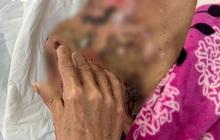 Cứu sống người phụ nữ bị bỏng nặng do ngã vào bếp lửa