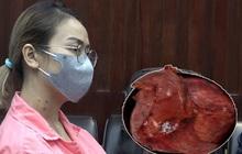 Cố nịt bụng vì sợ bị chê mập, không ngờ mang khối u tụy lớn nhất thế giới