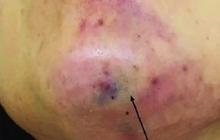 """TP.HCM: Tiêm filler nâng cằm tại spa """"rởm"""", cô gái trẻ chịu muôn vàn đau đớn, mặt biến dạng, đón Tết cùng vết sẹo """"khủng"""""""