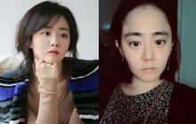"""Không thể nhận ra biểu tượng """"hack tuổi"""" Moon Geun Young: Gây sốc khi lộ mặt mộc chảy xệ, U35 mà lão hoá như U50"""