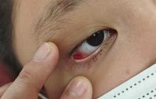 Nữ sinh 12 tuổi vỡ mạch máu mắt vì nhìn màn hình điện thoại 8 tiếng mỗi ngày trong thời gian dài