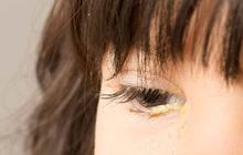 5 loại gỉ mắt bất thường đang cảnh báo bệnh tật nguy hiểm ở mắt nhưng thường bị bỏ qua