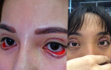 """Hậu quả khôn lường từ việc cắt mí mắt tại cơ sở """"chui"""" giá KHÔNG RẺ: Mắt phải treo ngược cành cây, đi ngủ giờ cũng là thử thách"""