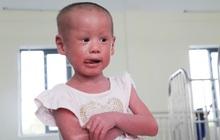 """Không thể đi Singapore chữa bệnh vì dịch Covid-19, """"em bé da trăn"""" bị bố mẹ bỏ rơi giờ ra sao?"""