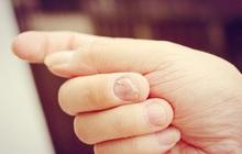 Những người gan tốt thường không có 3 biểu hiện này trên tay, kiểm tra ngay để nắm được tình hình sức khỏe