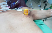 Phẫu thuật cứu sống một bệnh nhân bị dao găm vào ngực