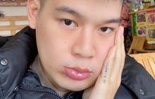 Long Chun bức xúc vì hình ảnh và câu chuyện bệnh tật của mình bị lợi dụng để... quảng cáo bảo hiểm