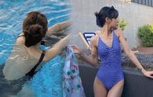 """5 mẹo khiến mụn trứng cá """"bay màu"""" nhanh chóng, giúp bạn diện bikini thả phanh mùa hè này"""