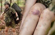 """Dương Hoàng Yến chia sẻ hình ảnh đôi chân đầy """"hoa văn"""" tím ngắt khi đi nhập ngũ khiến ai nấy đều xót xa"""