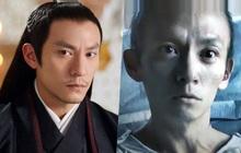 """Fan choáng nặng với ngoại hình ốm yếu, rụng hết tóc của """"mỹ nam giường chiếu"""" Trương Chấn sau khi giảm 13kg"""