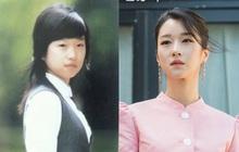 """Giữa biến căng, 2 bác sĩ bất ngờ lên tiếng làm rõ nghi án Seo Ye Ji phẫu thuật thẩm mỹ và bị """"ném đá"""" tơi bời"""