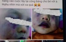 Nghi vấn điểm giữ trẻ không phép bạo hành dã man trẻ 18 tháng tuổi