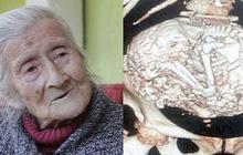 Cụ bà 91 tuổi đi khám vì phát hiện khối u trong bụng, bàng hoàng nhận ra đó là thai nhi nằm trong người suốt 60 năm