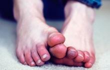 4 tình trạng xảy ra ở bàn chân ngầm cảnh báo nhiều vấn đề sức khỏe nghiêm trọng mà bạn không nên chủ quan