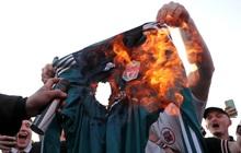 """Liverpool bị đối thủ """"cà khịa"""" thẳng mặt vì gia nhập Super League, fan đốt áo khiến HLV Klopp giận tím người"""