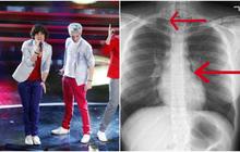 Hét thủng phổi là có thật: Buổi trình diễn của nhóm One Direction trước kia từng gây ra một thảm họa kinh hoàng