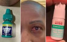 Nhầm keo dán móng là thuốc nhỏ mắt, người phụ nữ suýt mù cả đời nhưng tự cứu được mình nhờ hành động kịp thời ngay sau đó