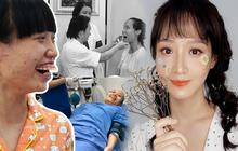 """Sau 10 cuộc phẫu thuật cam go, cô gái trẻ bị gọi là """"quái vật"""" trở nên xinh đẹp ngọt ngào như gái Hàn"""