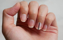 """4 nguyên nhân không ngờ khiến móng tay của bạn xuất hiện """"đường sọc dọc"""" bất thường"""