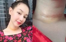 MC Quỳnh Chi phải phẫu thuật vì phát hiện tế bào ung thư tuyến giáp, vết sẹo lớn để lại trên cổ gây xót xa