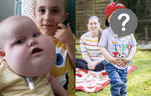 Cậu bé sinh ra với khuôn mặt khổng lồ từng gây hiếu kỳ đã đi được những bước đầu tiên sau 4 năm và diện mạo ở hiện tại