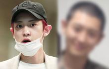 Chanyeol nhập ngũ xong da xuống cấp hẳn nhưng phản ứng của netizen mới bất ngờ