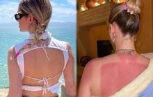 Nhiều người cũng từng bị cháy nắng nặng như Chiara Ferragni nhưng không phải ai cũng biết cách phục hồi da đâu nhé!