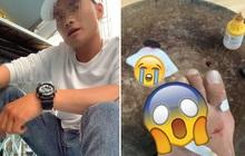 Buồn chuyện tình cảm, nam thanh niên livestream lấy dao chặt phăng ngón chân