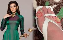 Hé lộ hình ảnh Khánh Vân bầm chân, tróc da vì giày cao gót tại Miss Universe 2020