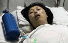 Cô gái 23 tuổi qua đời giữa đêm vì bị nhồi máu não, bác sĩ cảnh báo 1 việc đàn ông dù thích mấy cũng đừng làm với bạn gái