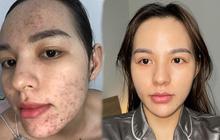 Tưởng như cả thanh xuân bị hủy hoại vì kem trộn, gái xinh thay đổi ngoạn mục sau một năm khi kiên trì skincare bài bản