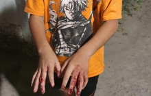 Chủ tịch nước yêu cầu TP.HCM làm rõ vụ trẻ em bị bạo hành