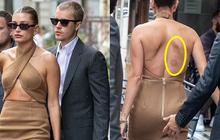 Giải mã vết bầm tròn lạ gây tò mò trên lưng bà xã Justin Bieber trong loạt ảnh gặp Tổng thống gây tranh cãi